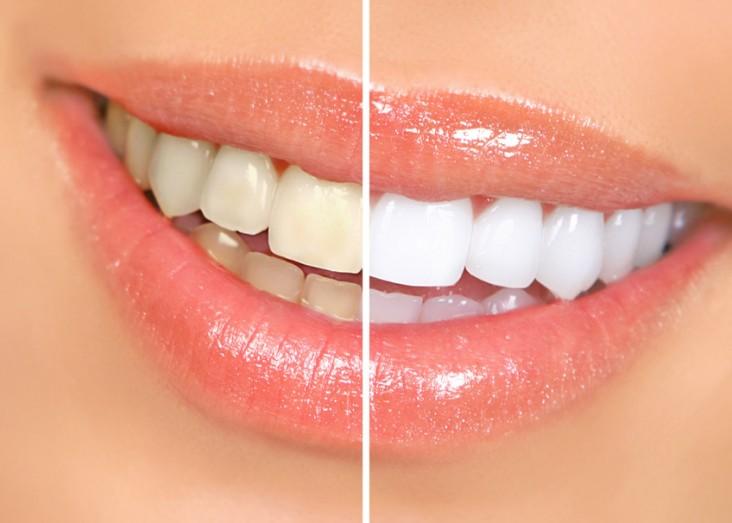 Profesionalno beljenje zob
