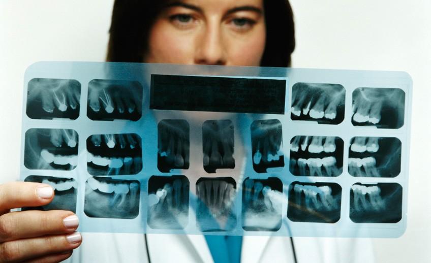 Vrhunsko RTG slikanje v zobozdravstvenem centru Alfa Dental